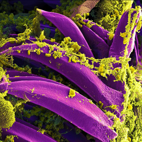 A scanning electron micrograph shows the bubonic plague bacterium Yersinia pestis.