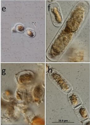 Microphotographs of ice algae.