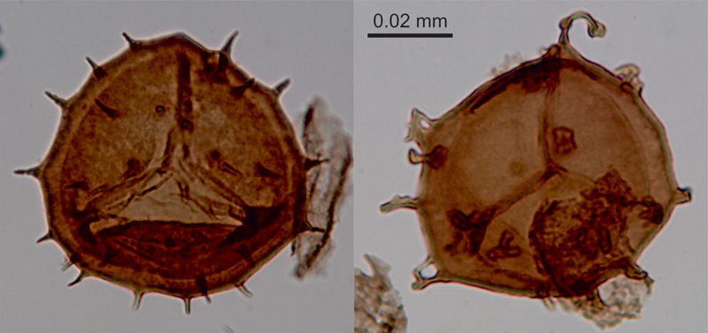 Normal and malformed spores from ancient fernlike plants