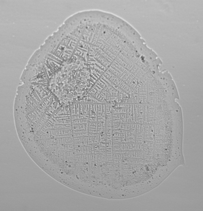A microscopic image of a cough droplet on a slide